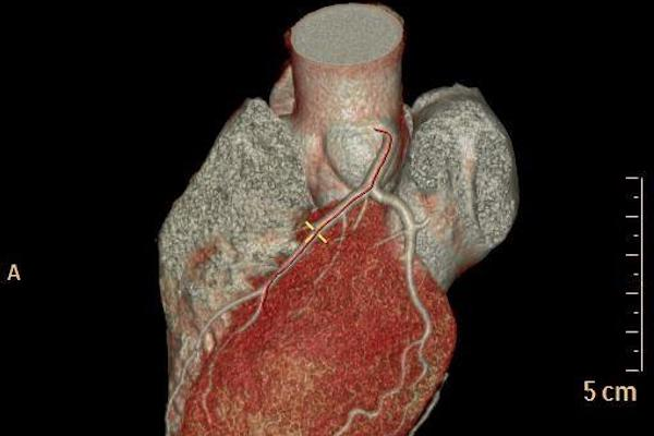 Delta Implants - Tac Cardiaca multistrato