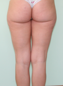 Delta_Implants-Centro Cellulite-dopo