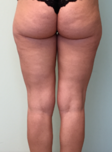 Delta_Implants-Centro Cellulite-prima