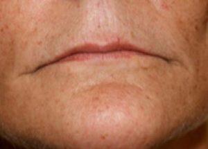 Delta_Implants-Medicina estetica-Acido Ialuronico Labbra1