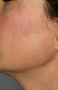 Delta_Implants-Medicina estetica-Guancia2