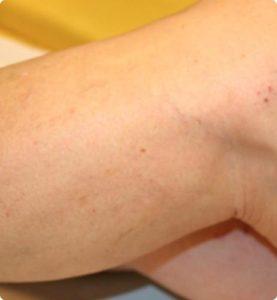 Delta_Implants-Medicina estetica-Laser2
