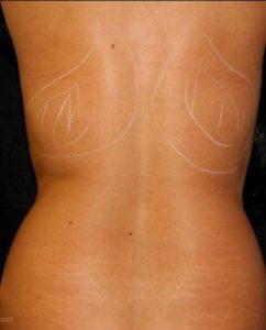 Delta_Implants-Medicina estetica-Rimodellamento linea corpo-Schiena2