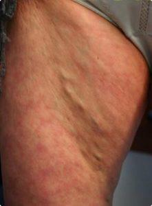 Delta_Implants-Medicina estetica-Terapia Laser mini-invasiva-Gamba1
