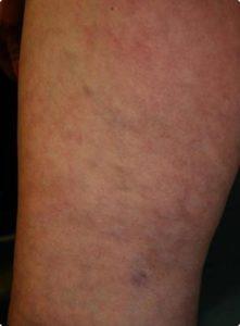 Delta_Implants-Medicina estetica-Terapia Laser mini-invasiva-Gamba3