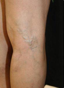 Delta_Implants-Medicina estetica-Terapia Laser mini-invasiva-Vene varicose1