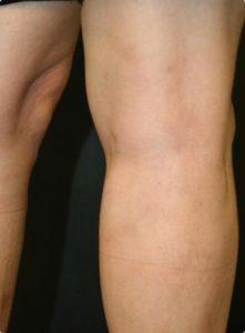 Delta_Implants-Medicina estetica-Terapia Laser mini-invasiva-Vene varicose2