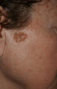 Delta_Implants-Medicina estetica-Verruca1