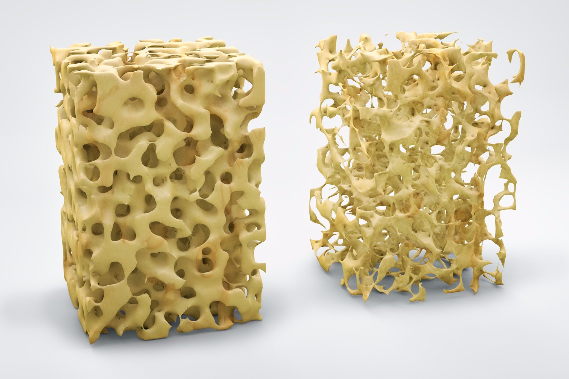 Check-up osteoporosi